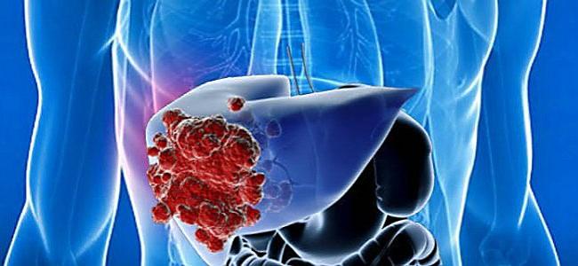 Рак печени – метастазы, признаки, симптомы, стадии и лечение рака печени, сколько живут?